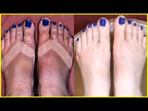 How To Give a Perfect Saloon Feet Pedicure At Home- Feet Brightening Pedicure