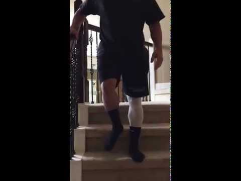 How to properly walk Downstairs after Total Hip Replacement Surgery