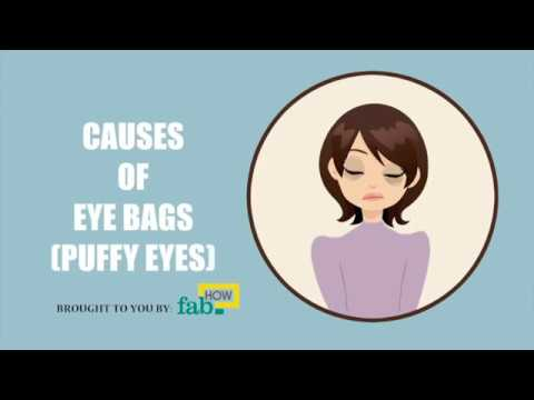 What Causes Bags Under Your Eyes (Puffy Eyes)