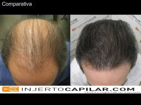 6381 FU's. Hair Transplant by FUE Technique. Advance Alopecia. Injertocapilar.com. 356/2010