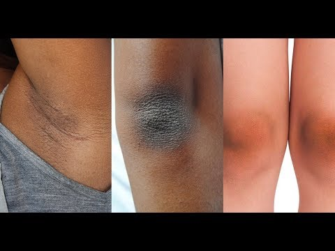 Miracle Solutions for Dark and Dry Skin or Dark elbow  | All About your Health