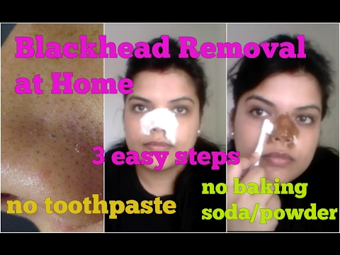 How to REMOVE BLACKHEAD on NOSE at HOME, 3 STEPS NATURAL EXTRACTION on FACE MASK 100% result HINDI