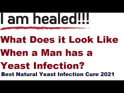 What does it look like when a man has a yeast infection?