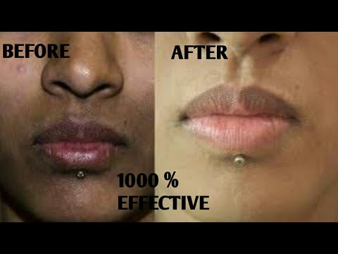 How To Remove Dark Black Patches ,Dark Spots ,Hyper Pigmentation, Around Mouth In Just 15 Minutes