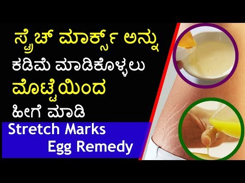 How to Remove Stretch Marks in Kannada: Stretch Mark Removal in Kannada