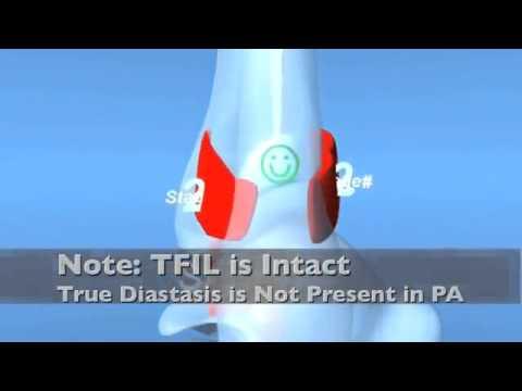 Ankle Fracture - PAB Pronation ABduction Eversion