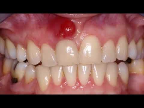 Natural Remedy For Abscess Tooth Swelling & Infection And Tooth Ache- How To Use