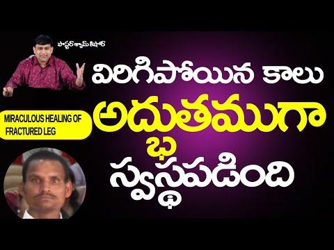 Mr. Hari – Miraculous Healing of fractured leg - Telugu