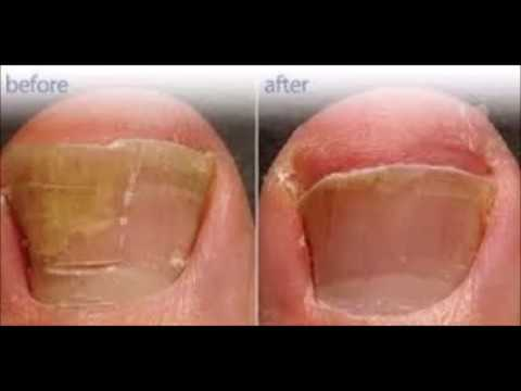How Long Does It Take To Get Rid Of Toenail Fungus With Tea Tree Oil