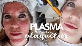Download ME INYECTAN PLASMA RICO EN PLAQUETAS / MARTA IBRAHIM Video