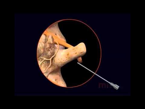 Lumbar radiofrequency ablation