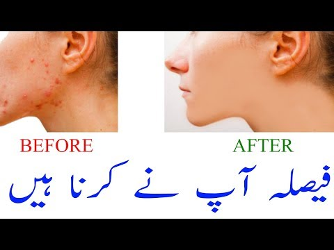 Home Remedies For Acne - Natural Acne Treatment - Home Made Free Just One Night Remove All Pimples