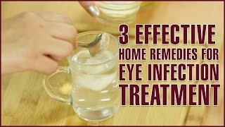 3 Easy Effective Home Remedies For Eye Infection Treatment