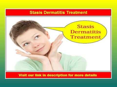Stasis Dermatitis Treatment - Please See Now!