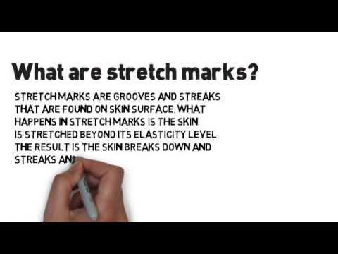 Stretch Marks Cream - www.Stretch-Marks-Cream.com