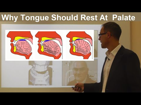 Should Tongue Rest/ Touch at the Palate/ Maxilla/ Roof of the Mouth By Dr Mike Mew