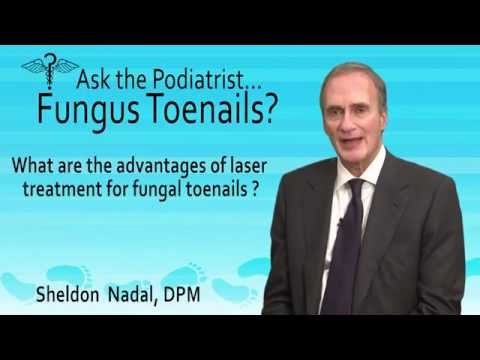 Podiatrist Sheldon Nadal Toronto - What Are The Advantages Of Laser Treatment For Fungal Toenails?