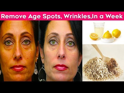 Remove Wrinkles, Acne, Age Spots and Excess Facial Fats Using This all Natural Remedy