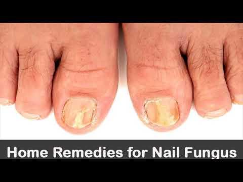 How To Use Tea Tree Oil To Treat Toe Nail Fungus- How To Use