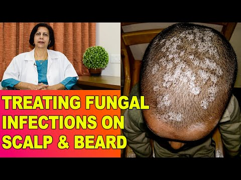 Fungal/Fangal Infections, Itching in Head/Scalp & Beard - Treatment || Dr Vijaylaxmi Singh