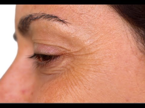 How to Get Rid of Crow's Feet - Crows Feet Treatment