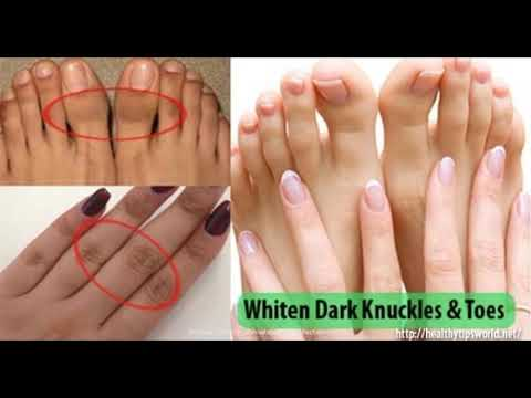 THIS IS HOW YOU CAN GET RID OF DARK KNUCKLES AND TOES EASILY AT HOME