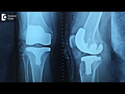 What can you expect after Knee Replacement Surgery? - Dr. Bala Murali Krishnan