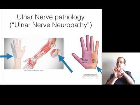 How to treat pain, cold, numbness in the pinky and ring finger - ulnar neuropathy, cubital tunnel
