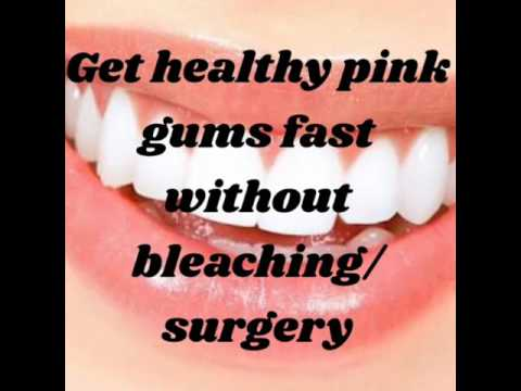 How to have pink gums fast without bleaching/ surgery