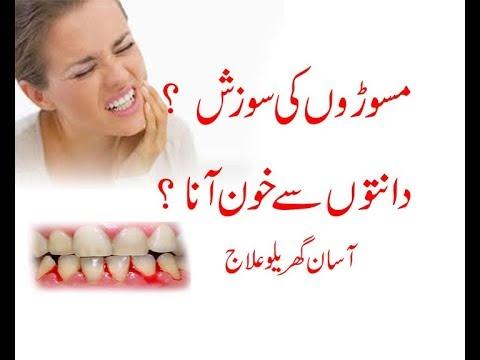 Top 6 Super Best Remedies For Swelling And Bleeding Gums In Urdu/Hindi