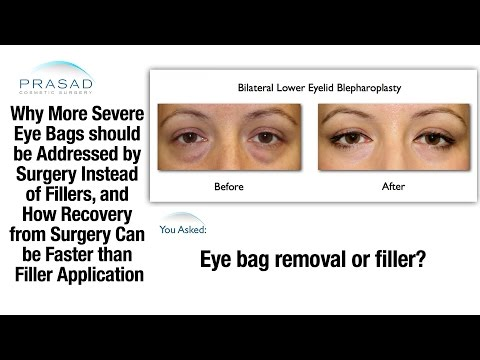 The Limitations of Dermal Fillers to Treat Puffy Eye Bags, and Fast Recovery Eye Bag Removal Surgery