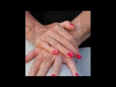 How To Get Rid Of Age Spots On Arms And Hands