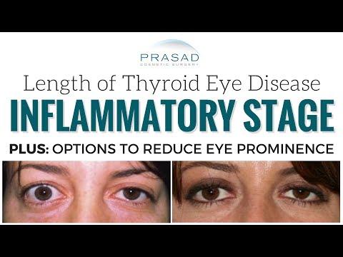 How Long Thyroid Eye Disease/Graves Disease Lasts, and Reducing Eye Prominence