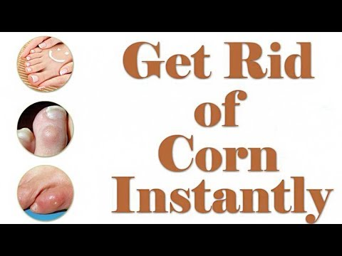 Corn Treatment - How to Get Rid of Corn on Foot - Corn Removal