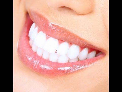 {#184} Labial Veneers (Teeth Before and after)