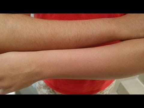 How to Make Arm Hair Thinner.