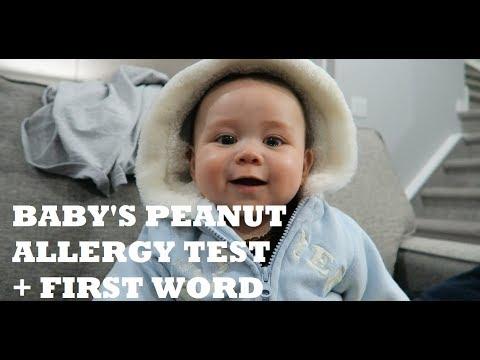 BABY'S PEANUT ALLERGY TEST + FIRST WORD