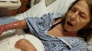 Download Brown Recluse Spider Bite Aftermath, Graphic content Video