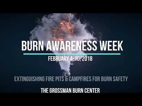 Campfires Burn Awareness Week