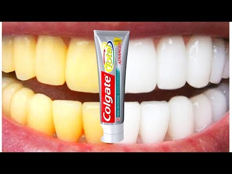 Teeth Whitening At Home In 3 Minutes | How To Whiten Your Yellow Teeth Naturally | 100% Effective