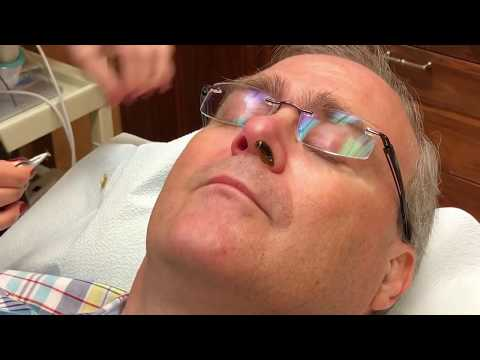 Dr. G's Nose Hair Wax Removal!  With Meta-Seven!