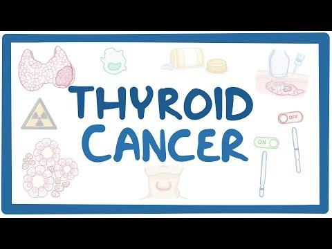 Thyroid cancer - causes, symptoms, diagnosis, treatment, pathology