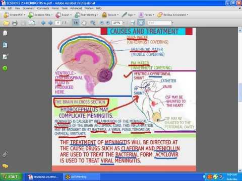 SESSIONS FOR NURSES 23  MENINGITIS