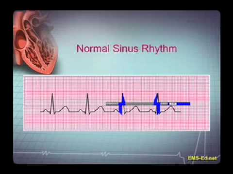 Intro EKG Interpretation Part 1