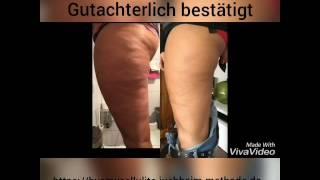ByeBye Cellulite wirkt! Gutachterlich bestätigt. Topseller by Dr.Juchheim Cosmetics.