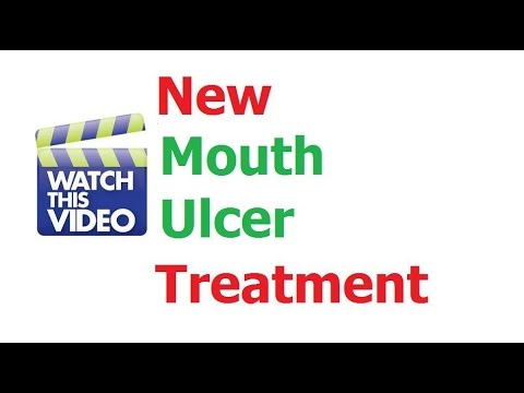 Mouth Ulcer Treatment Sore Ulcers Remedy