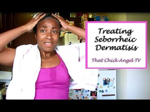 Treating Seborrheic Dermatitis (Dry Scalp)   That Chick Angel TV