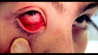 REALLY BAD PINK EYE with Discharge & Fever | Dr. Paul