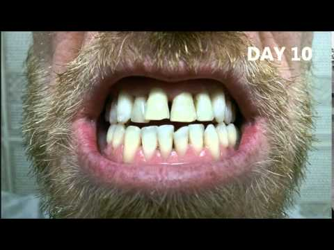 CREST 3D Whitestrips LUXE SUPREME Flexfit A smoker's Journey