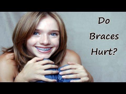 Do Braces Hurt? How to Take Away the Pain